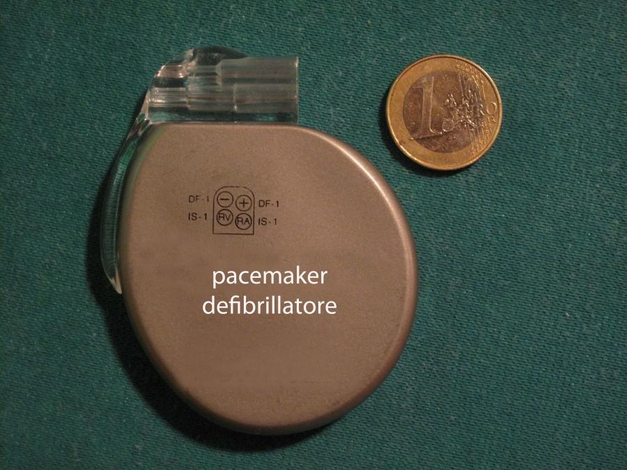 defibrillatore interno